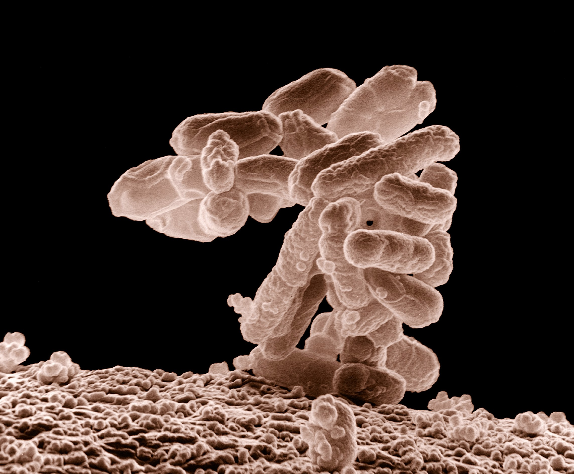 E-coli-superbacterias